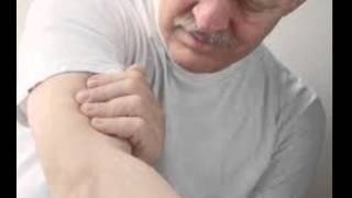 Brazo en derecho mano y hormigueo y la pierna del entumecimiento