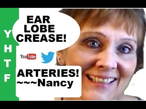 My Ear Lobe Crease ~ Arteries ~ How I Do It ~~~Nancy