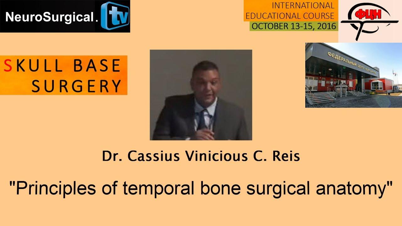 Dr Cassius Vinicious C Reis Principles Of Temporal Bone Surgical