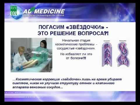Народная медицина - лечение тромбофлебита, варикозного