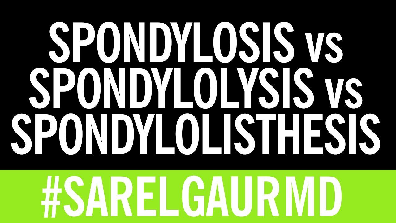 Spondylolisthesis vs spondylolysis vs spondylosis