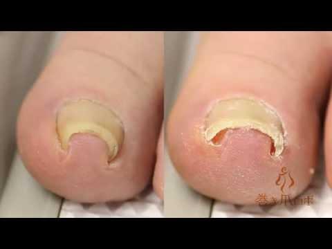 巻き爪治療の革命児!手術不要で痛い巻き爪が治る感動の瞬間です。