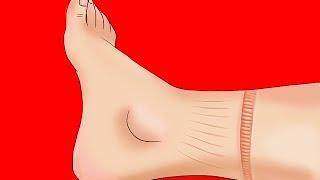 Corazón pie del hinchado palpitaciones