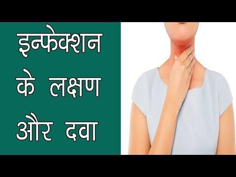 गले में इन्फेक्शन के लक्षण और इलाज - gale me infection ke lakshan aur upchar