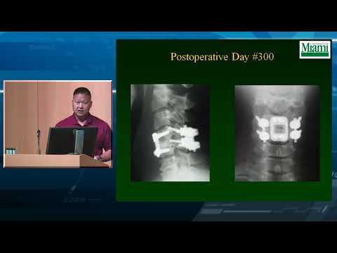 4. Cervical Facet Fractures and Dislocations