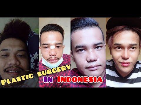 NOSE JOB INDONESIA RHINOPLASTY PLASTIC SURGERY OPERASI HIDUNG INDONESIA RHINOPLASTY JAKARTA