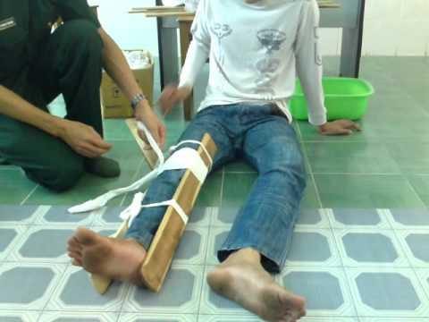 cố định gãy xương cẳng chân