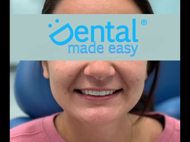 Veneers Before After | DENTAL MADE EASY