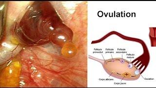 Saignement entre les Règles - Hémorragie Vaginales - Métrorragies