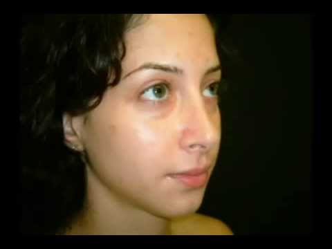 Rhinoplasty (Nose Reduction)