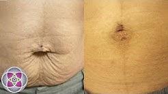 Laser Stretch Mark Removal & Skin Tightening