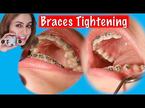 Download What Happens At Your Braces Adjustment/ Tightening?