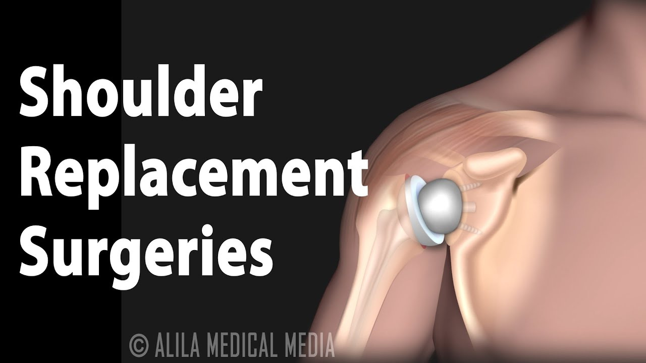 Surgical Options for Shoulder Arthritis, Animation.