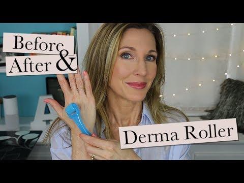 Dermaroller Update ~ 30 Day Results!