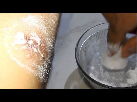 Most Powerful Home Remedy For Every Purposes – BORIC ACID/POWDER