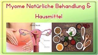 Myome Natürliche Behandlung & Hausmittel