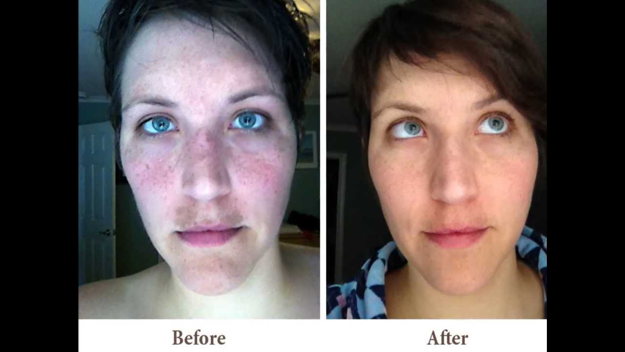 Laser Resurfacing For Scars Before Amp After Youtube