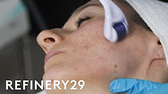 hqdefault - Salon Treatments Acne Vulgaris