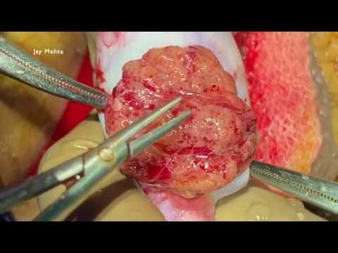 Azoospermia Treatment microTESE for Non Obstructive Azoospermia (NOA)