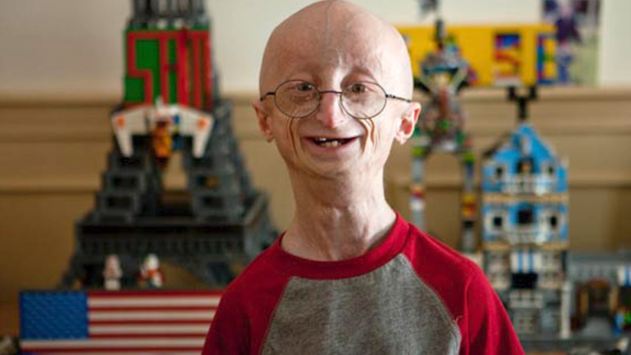 17 Yr Old Kid Ages 8 Times Faster - Sam Berns - YouTube