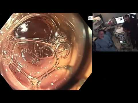 New Frontiers 2014 Live  Underwater colonoscopy HD