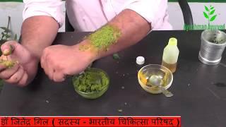 चर्म रोगों का आपके घर में ही मिनटों में इलाज Charm rog ke gharelu upchar Dr. Jitender Gill