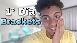 ORTODONCIA: Primer dia con Brackets 2018