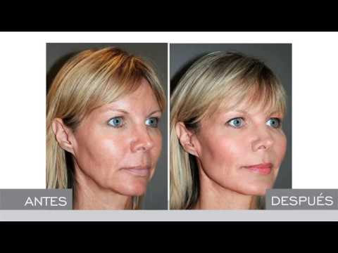 Estiramiento facial con hilos tensores