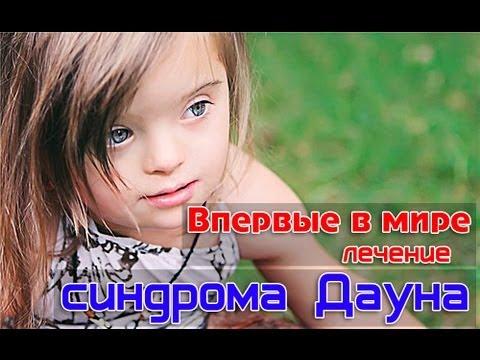 Синдром Дауна: причины, симптомы, диагностика, формы и лечение