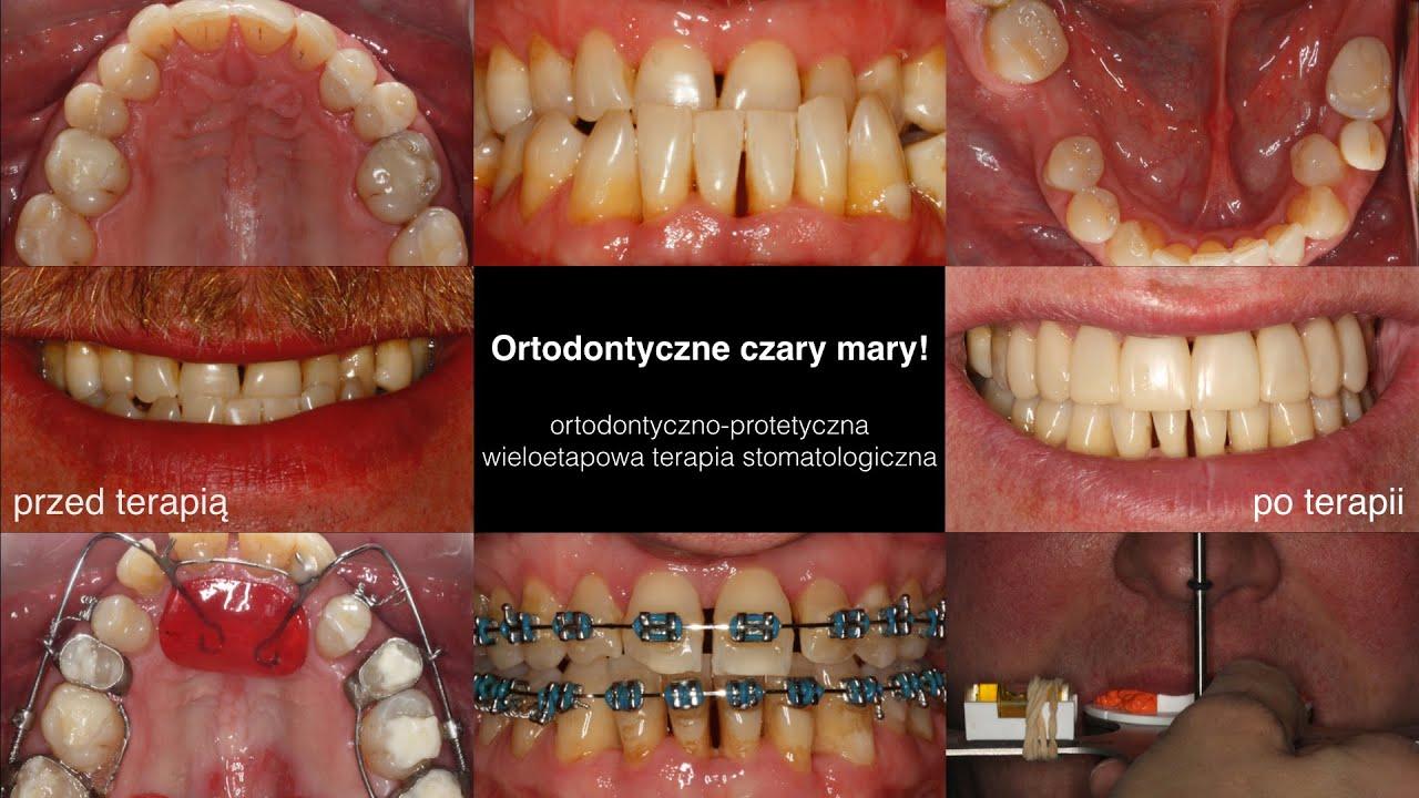 Cennik usług stomatologicznych