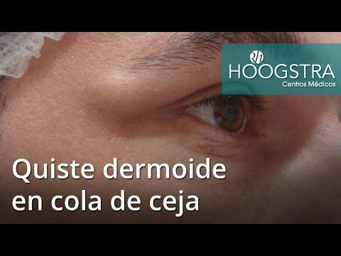 Quiste dermoide en cola de ceja (16110)