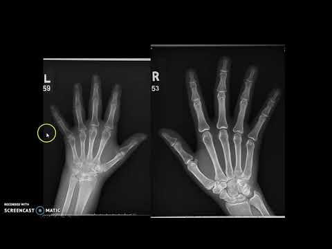 Hand, Finger & Thumb x-ray protocol