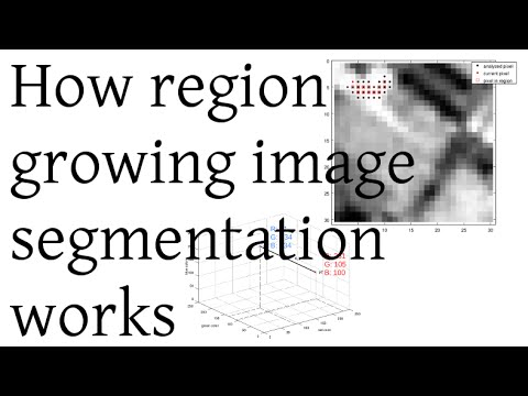How region growing image segmentation works