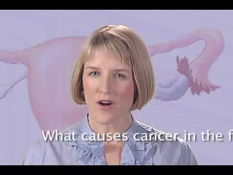 Poliklinika Harni - Karcinom jajovoda