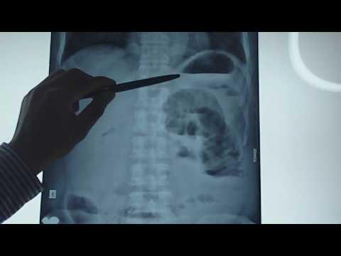 Nhận định hình ảnh hơi (khí) trên x-quang bụng
