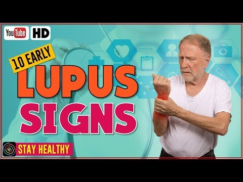 10 Early Signs and Symptoms of Lupus  Warning Signs of Lupus