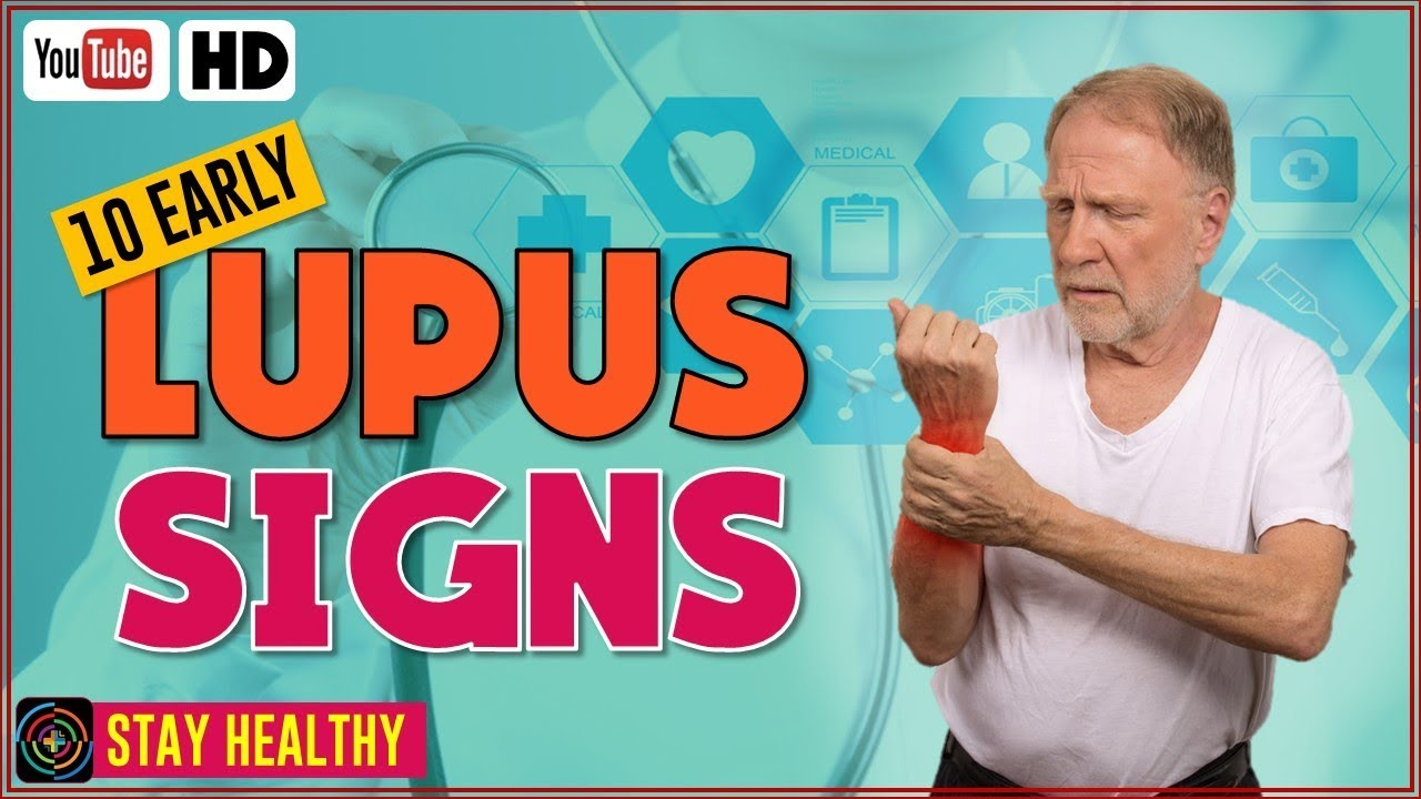10 Early Signs and Symptoms of Lupus | Warning Signs of Lupus