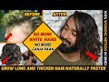How To Grow Long and thicken Hair Naturally and Faster | Treatment for White  Hair 100% Works