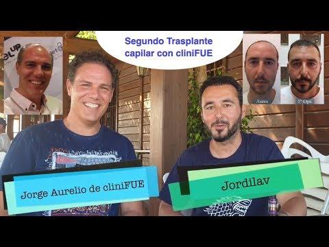 Jordilav y Jorge Aurelio tras 2 a  Operación de trasplante capilar  cliniFUE Turquía 9,5 Meses