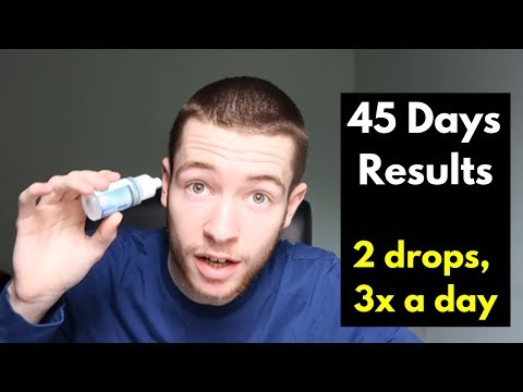 Liquid MSM For Eye Floaters Update 45 Days Results