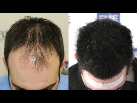FUE Hair Transplant (3467 + 1000 grafts in NW - Class IV - A), Dr. Juan Couto - FUEXPERT CLINIC