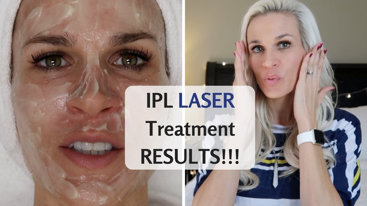 IPL LASER TREATMENT RESULTS ⭐ PhotoFacial & Sublative (Form Med Spa)