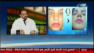 #الناس_الحلوة|   جراحات تجميل الأنف  القياسات والدقة  مع د.محمد ابو زيد
