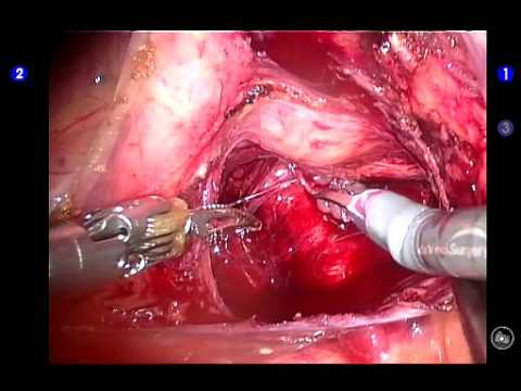 Retzius Sparing Robot Assisted Radical Prostatectomy Posterior