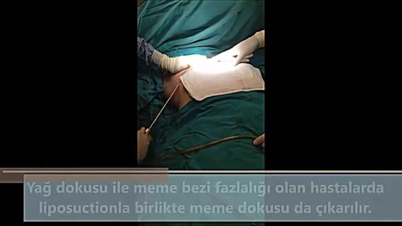 Meme (göğüs) küçültme ameliyatı