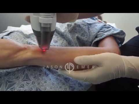 Fraxel Laser / Arm Skin Resurfacing / Collagen Remodeling / Beverly Hills California