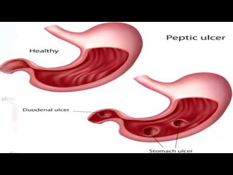 Causes of Stomach Pain | Causes Of Stomach Pain After Eating
