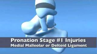 Introduction to Lauge Hansen & Danis Weber Classifications Ankle Fracture
