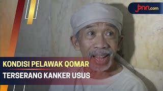 Komedian Qomar Derita Kanker Usus Stadium 4, Begini Kondisinya