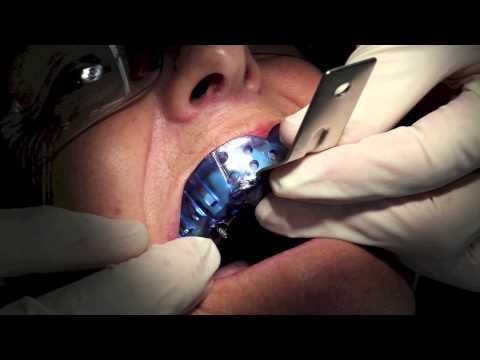 Dentist Training - Single Implant Impression